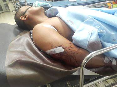 Wounded by Lapanday Guards in Madaum, Tagum City. Photo courtesy of Kilab Multimedia, Southerm Mindanao